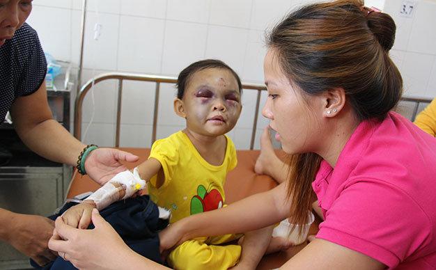 Vietnamese couple detained for brutally beating little