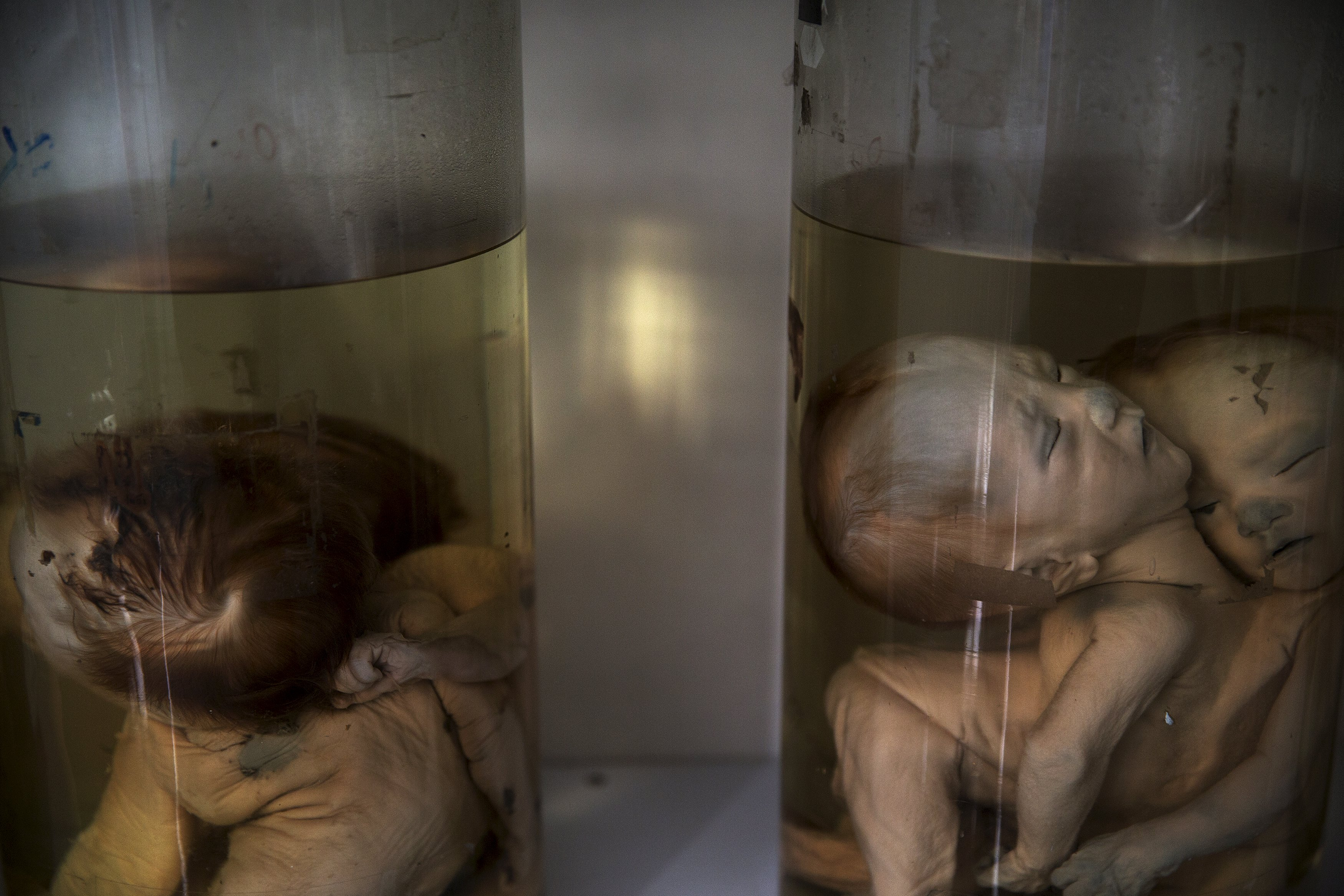 Deformed foetuses are seen inside glass containers in an exhibition room at Peace Village in Tu Du hospital in Ho Chi Minh City April 14, 2015. Doctors at the hospital attribute the high incidence of deformities to the use of Agent Orange during the Vietnam War. According to the head of the Peace Village, more than two-thirds of its over 60 patients are from areas that were heavily sprayed by Agent Orange and their health conditions are linked to the use of the defoliant.