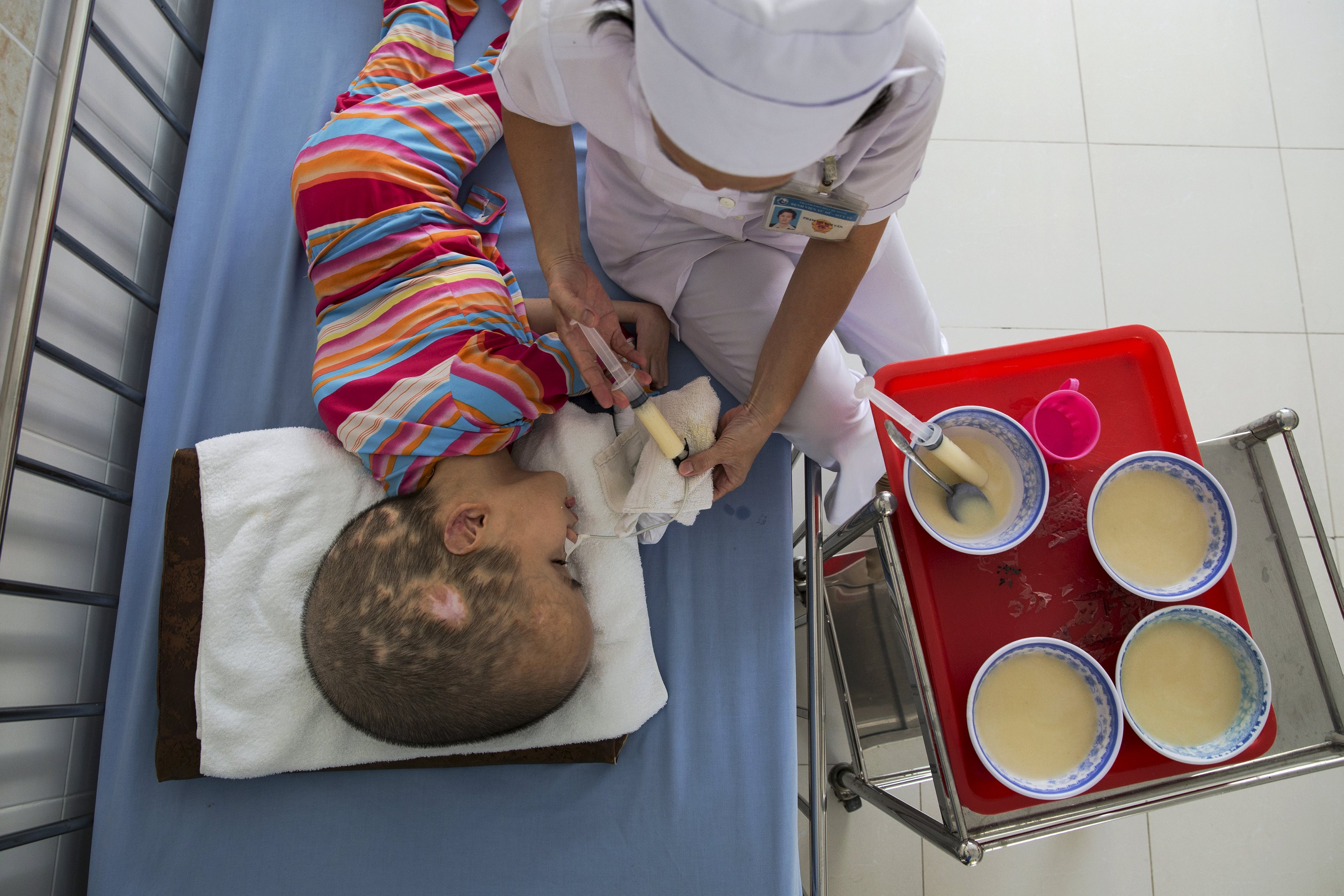 Pham Thi Phuong Khanh is fed by a hospital staff member at the Peace Village in Tu Du hospital in Ho Chi Minh City April 14, 2015. Both of Pham Thi Phuong Khanh's parents were exposed to Agent Orange during the Vietnam War.