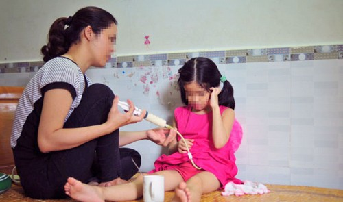 Vietnamese five-year-old suffers esophagitis after drinking bleach