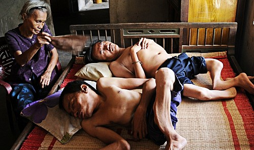 Tran Thi Dang fans her two sons, Nguyen Van Hai and Nguyen Van Hien, to ease them to sleep whenever they suffer pain.