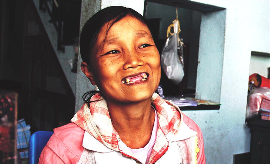 Vietnamese woman unfailingly smiles at decades-long illness
