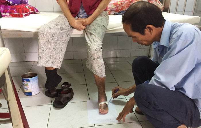 ​​Meet the Vietnamese man who makes 'shoes without sizes' for leprosy patients