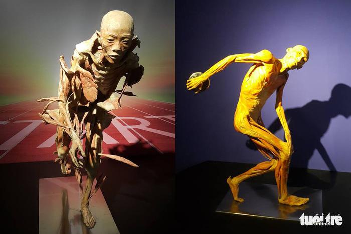 Preserved body, organ exhibition raises eyebrows in Ho Chi Minh City