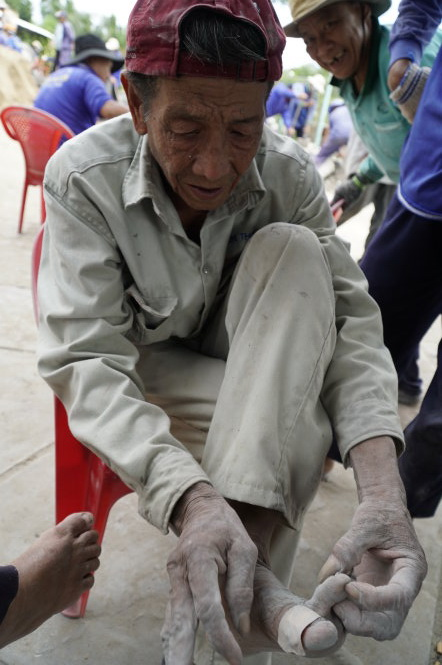 Huynh Phu Chien, 75, shows his injured foot at a construction site in Dong Thap Province, southern Vietnam. Photo: Tuoi Tre