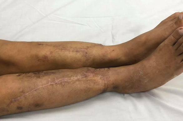 Nguyen Manh Hung's legs post-surgery is seen in this photo provided by the hospital.