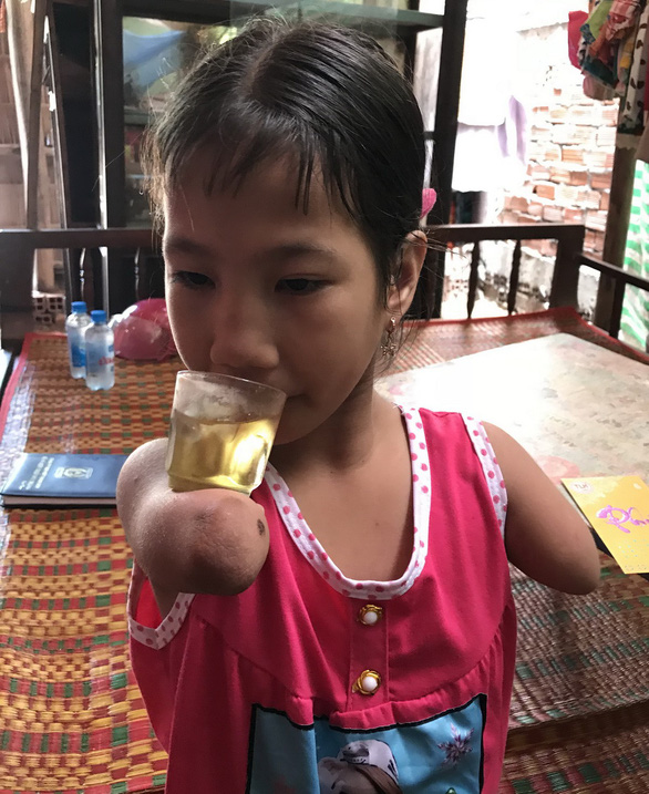 Tran Thi Hieu Thao supports a glass of water on her short arm at her grandparents' house in Soc Trang Province, southern Vietnam. Photo: Khac Tam / Tuoi Tre