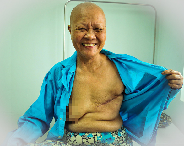 A cancer patient smiles. Photo: Dang Huu Hung
