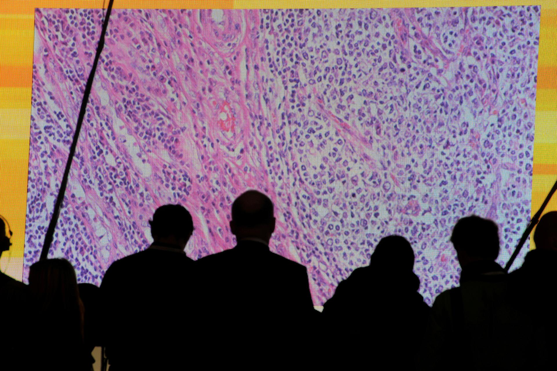Cancer overtakes heart disease as biggest rich-world killer