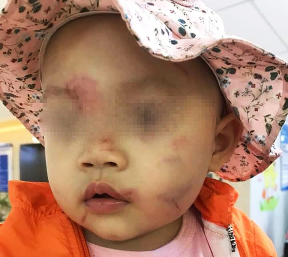 Vietnam girl goes home covered in bruises on first day of preschool