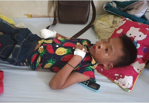 9-yo Vietnamese boy loses hand in flashlight explosion