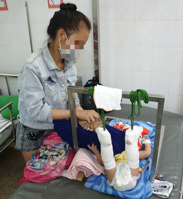 Nguyen Hong Tim takes care of her four-month-old baby, who lies on a hospital bed undergoing traction at the Children's Hospital 2 in District 1, Ho Chi Minh City. Photo: Minh Hoa / Tuoi Tre
