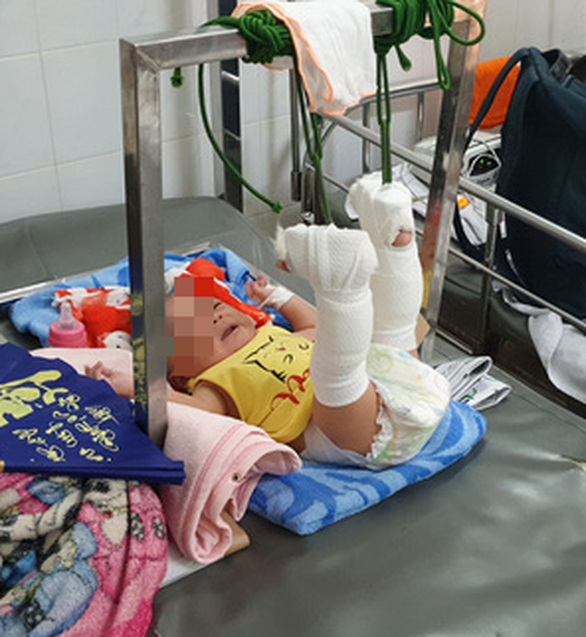 Four-month-old C.M.K. lies on a hospital bed undergoing traction at the Children's Hospital 2 in District 1, Ho Chi Minh City. Photo: Minh Hoa / Tuoi Tre