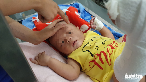 Vietnamese infant hospitalized with serious injuries after babysat by father