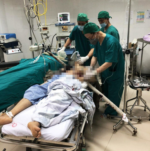 Surgeons remove an iron rod from a man's body at Bai Chay Hospital in Quang Ninh Province, Vietnam, April 12, 2020. Photo: Dinh Hai / Tuoi Tre