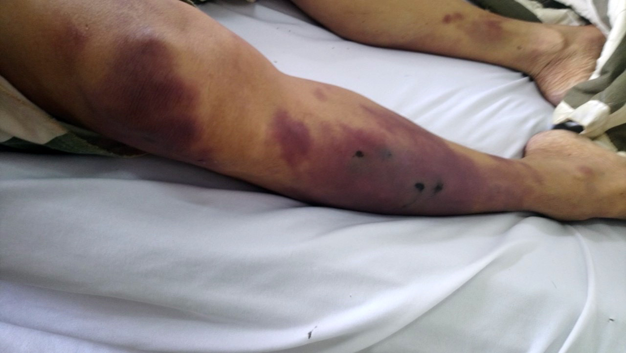 The body of Nguyen Q. L., who was found dead inside a cell at a custody suite of a police station in Chau Duc District, Ba Ria – Vung Tau Province, Vietnam on May 8, 2020, is full of bruises in this photo provided by the victim's family.