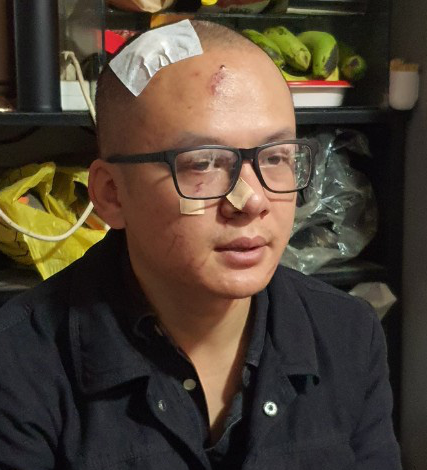 Do Khoi Nguyen suffers an injured face after being attacked at a coffee shop in Da Lat City, Vietnam, July 11, 2020. Photo: L.D. / Tuoi Tre