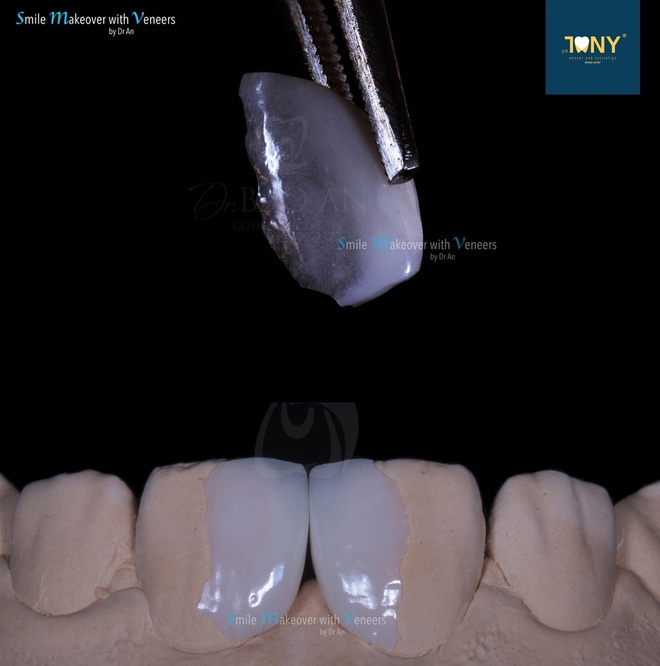Veneers of only 0.2-0.5 millimeters in thickness preserve the original teeth structure and provide a natural look.