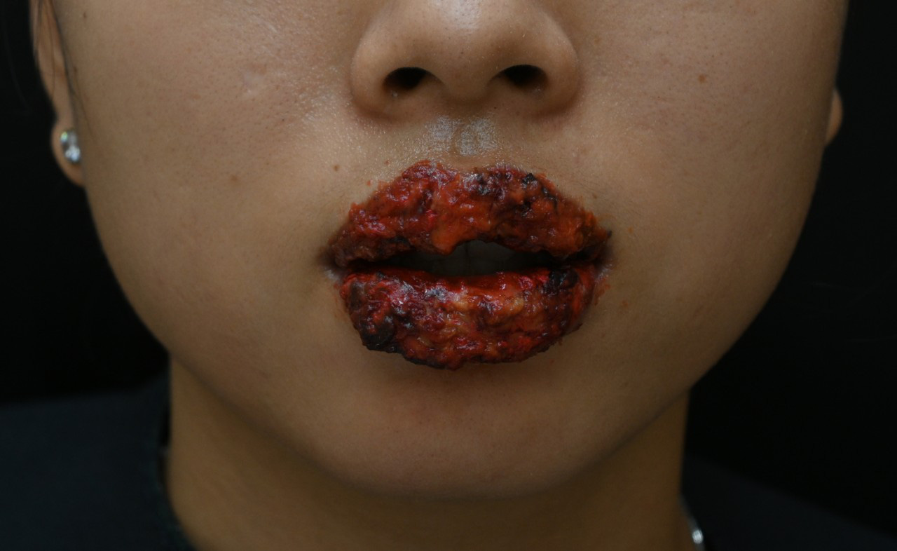Vietnamese woman suffers complications after lip blush