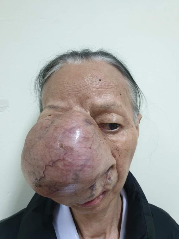 In Vietnam, four hospitals join surgery to remove tumor occupying most of patient's face