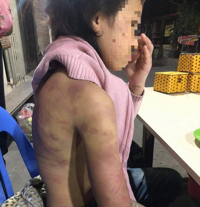 12-year-old girl allegedly tortured by mother, raped by latter's boyfriend in Hanoi