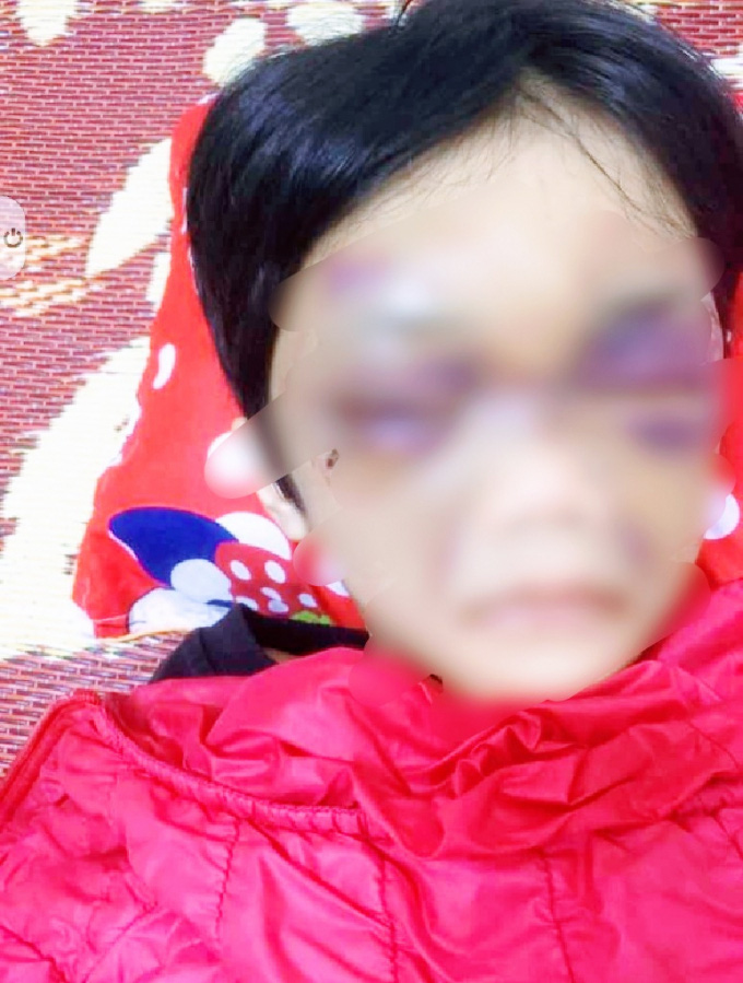 6-year-old girl brutally beaten by mother in northern Vietnam
