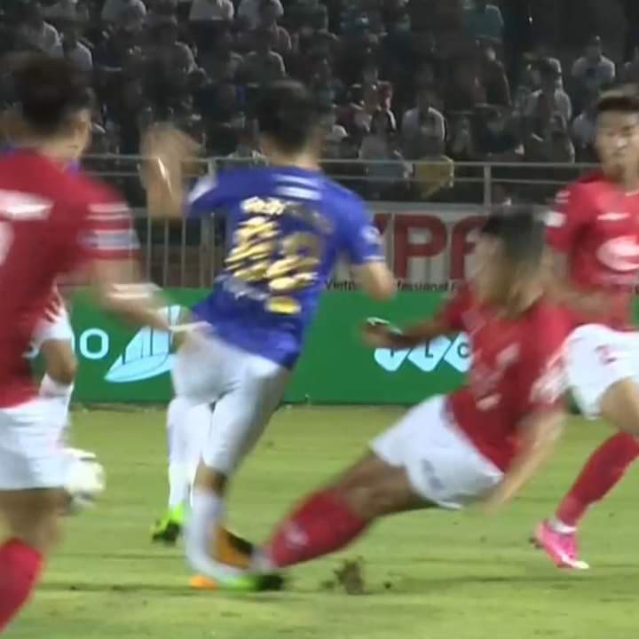 This still image shows the right leg of Hanoi FC's Do Hung Dung bending in a horrendous challenge from Ho Chi Minh City FC's Ngo Hoang Thinh in their clash at Thong Nhat Stadium in Ho Chi Minh City, March 23, 2021.