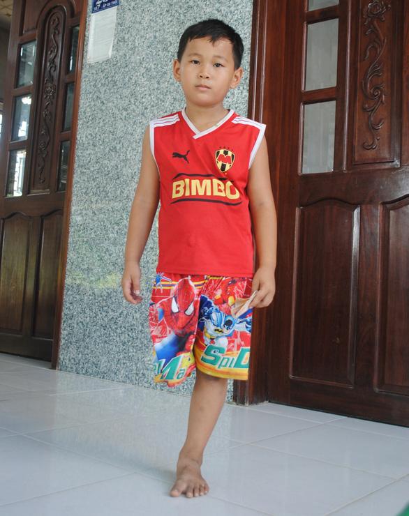 The boy moves around briskly despite his physical disability. Photo: Thanh Nhon / Tuoi Tre