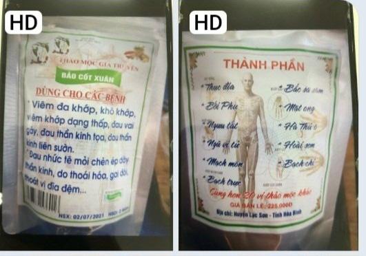 Vietnamese woman suffers paracetamol poisoning following neighbor's treatment advice