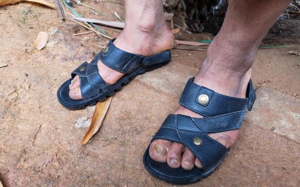 The feet of Vu Gia Po, who trekked 7,300 kilometers to flee modern slavery. Photo: V.T. / Tuoi Tre