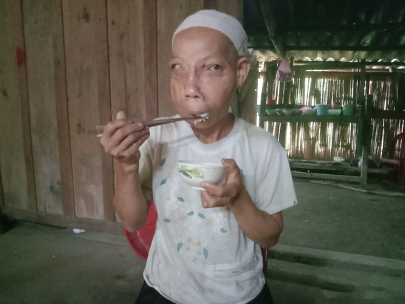 Ly Mui Xien now can eat with ease in this supplied photo following her successful tumor removal surgery five years ago.